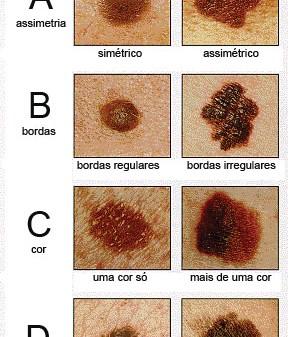 abcd_melanoma