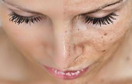 manchas-piel